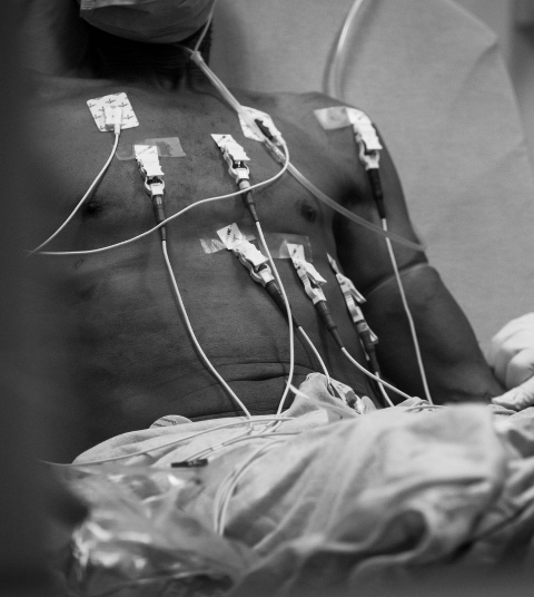 Photo of patient plugged into multiple devices